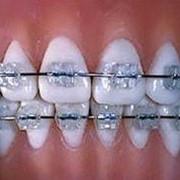 Выравнивание зубного ряда цена Киев. Выравнивание зубов Киев.Ортодонтия, выравнивание зубного ряда, зубов, брекеты, исправление. Выравнивание зубного ряда, зубов фото