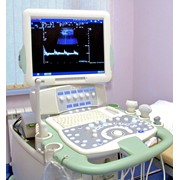 Исследование ультразвуковое (УЗИ) фото