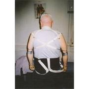Протезирование верхних конечностей (кисть) фото