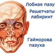 Лечение ГАЙМОРИТА лазером фото