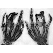 Реконструктивная хирургия фото