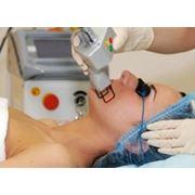 Лазерная хирургия фото