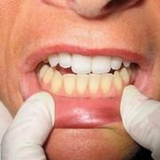 Чистый рот – здоровые сосуды фото