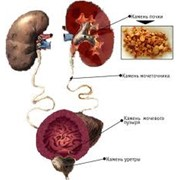 Лечение мочекаменной болезни фото