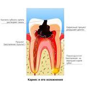 Стоматологическая хирургия имплантация фото