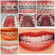 Ортодонт.материалы качественные фото