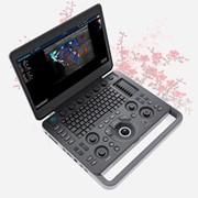 УЗИ аппарат SonoScape S2N фото