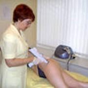 Мезотерапия фото