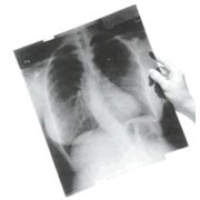 Куплю рентген - снимки б/у, пленку б/у. фото