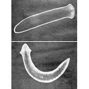 Исследование на паразитарные грибки фото