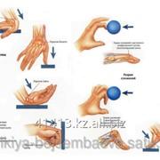 Лечение последствий травм: анкилозы, контрактуры фото