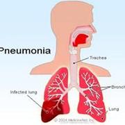 Лечение пневмонии фото