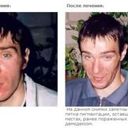 Демодекоз у человека лечение целебными травами фото