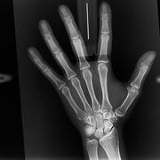 Рентгенограмма костей кисти фото