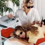 Лазерная терапия фото