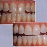 Чистка зубов ультразвуком фото