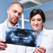 Плазмолифтинг в стоматологии фото