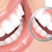 Профессиональная гигиена зубов фото