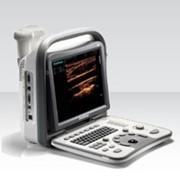 УЗИ портативная система SonoScape А6 фото