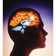 Курсовое лечение последствий хронического нарушения мозгового кровообращения в Киеве (Киев, Украина), цена фото