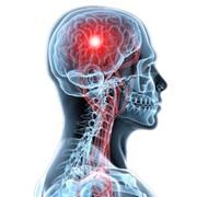 Консультации невропатолога Винница Харьков Киев Днепропетровск фото