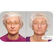 Что такое Редермализация кожи Hyalual? фото