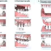 Протезирование зубов в Костнае фото