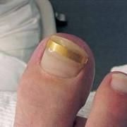 Ортониксия: коррекция вросшего ногтя пластиной Подофикс фото