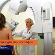 Маммография цифровая молочных желез фото