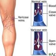 ДНК-диагностика предрасположенности к венозным тромбозам (тромбофлебитам) фото