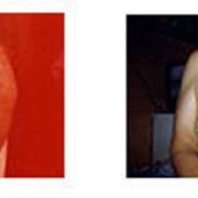 Диагностика и лечение мастопатии, рака молочной железы фото