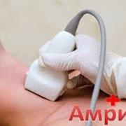УЗИ щитовидной железы. Астана фото