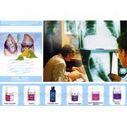 Программа восстановления функции дыхательной системы фото