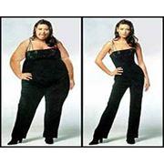 Лечение ожирения до 3 кг. за 1 день. фото