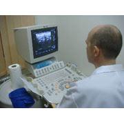 Ультразвуковая диагностика щитовидной железы фото