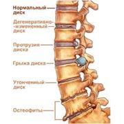 Лечение остеохондроза фото