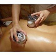 Баночный массаж Киев фото