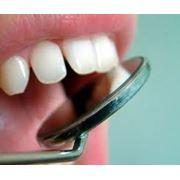 Консультации по лечению зубов фото