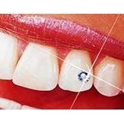 Украшение зубов фото
