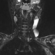 Магнитно-резонансная томография образований мягких тканей фото