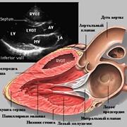 Ультразвуковое исследование сердца (эхокардиография) в СантаЛен, Буча фото