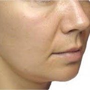 Иссечение избытков кожи лица и шеи фото
