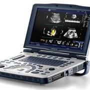 GE Logiq V2 - универсальный портативный УЗИ аппарат фото