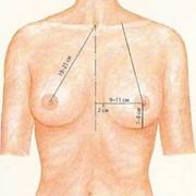 Подтяжка молочных желез, мастопексия фото