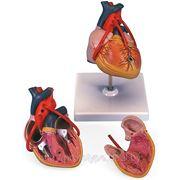 Изготовление классической модели сердца с анастомозами фото