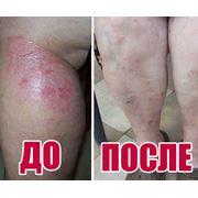 Профилактическая установка, которая способствует при таких заболеваниях как Дерматологические заболевания кожи (псориаз), потенция, нервые растройства и других заболеваний фото