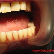 Лечение периодонтита, Стоматологические услуги, Стоматология фото
