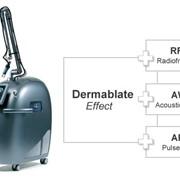 Эрбиевый косметологический лазер Dermablate Effect фото