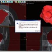 Расчет материала для синус-лифтинга, томограф компьютерный конусно-лучевой WhiteFox фото