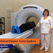 Спиральная компьютерная томография (СКТ) фото